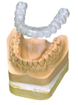 Zahnmodell mit Schiene